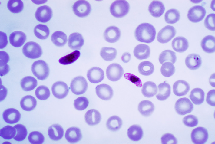 malaria in blood film